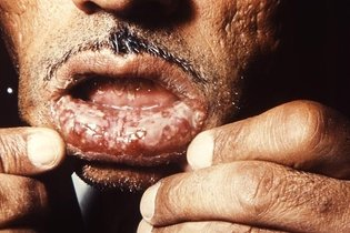 Pênfigo vulgar na boca