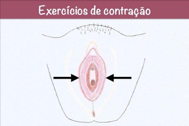 Fazer exercícios de contração da vagina ajuda a diminuir a flacidez