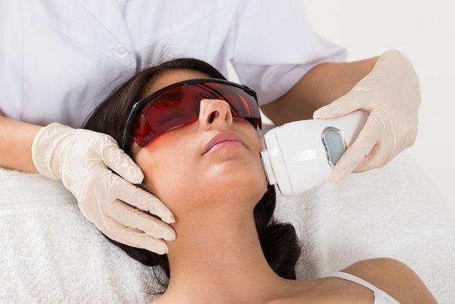 Tratamento a laser combate rugas e tira manchas