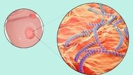 Syphilis: What is it, symptoms and treatment