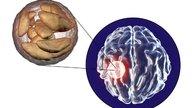 O que é Abscesso Cerebral e como identificar
