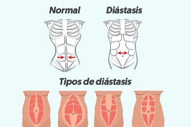 Cómo identificar y tratar la Diástasis Abdominal