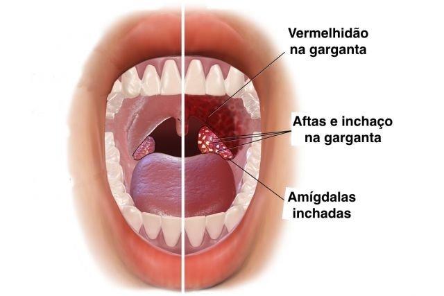 Garganta sadia X garganta inflamada