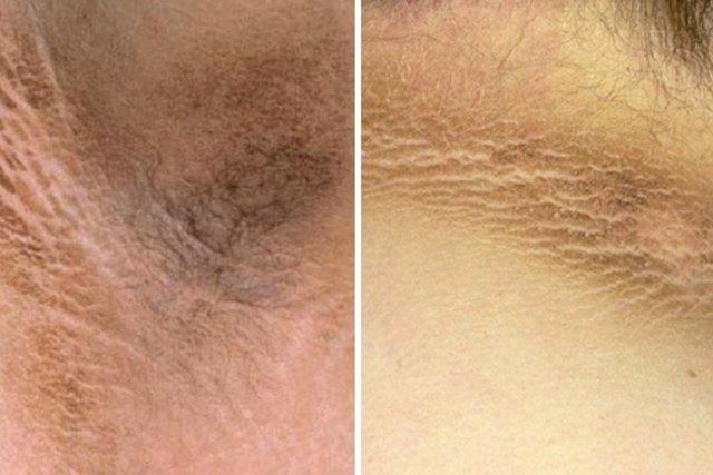 Manchas escuras na pele podem indicar Pré Diabetes