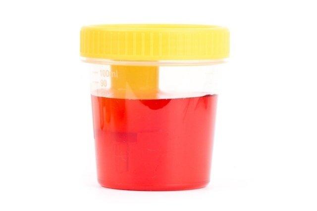 dolor de espalda baja náuseas micción frecuente y hematuria