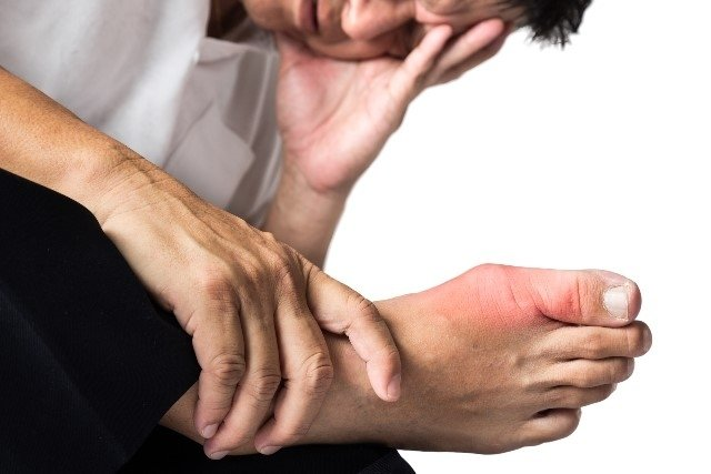 How to Identify the Symptoms of Gout