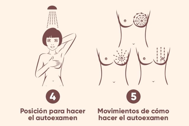 Cómo hacer el autoexamen de mama