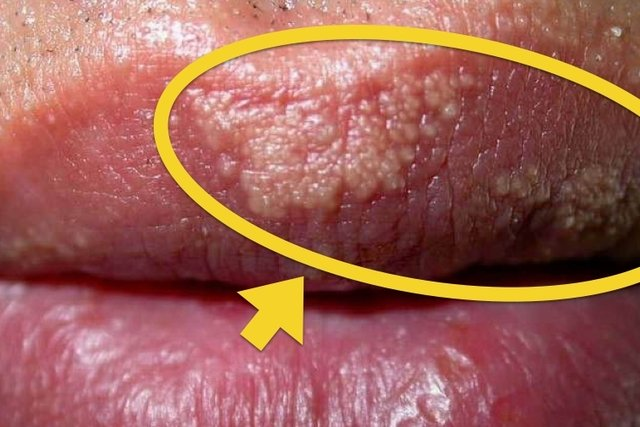 Bumps foreskin white on White Bumps