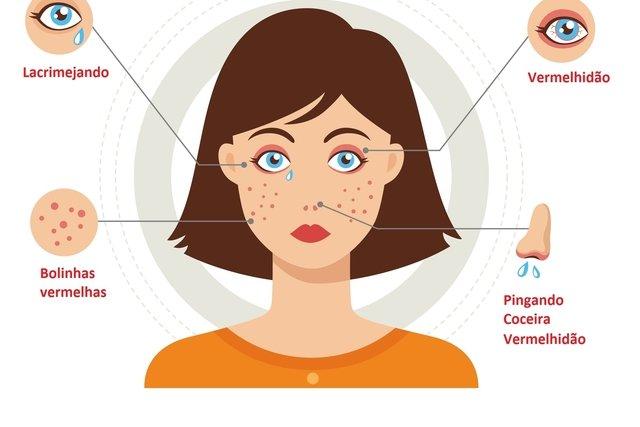 Sintomas de alergia