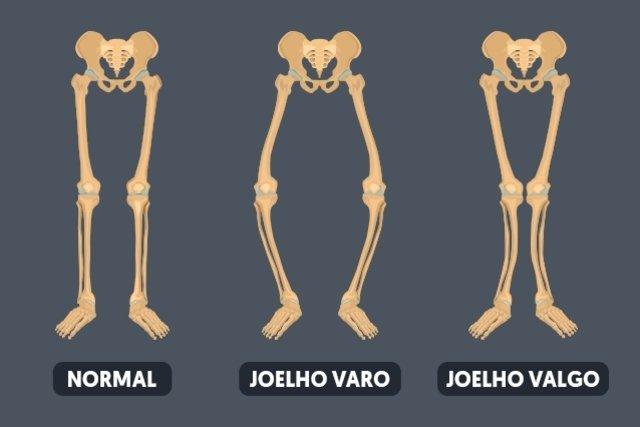 Como identificar e tratar o Joelho Valgo