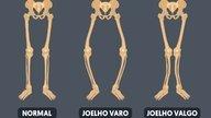 Joelho valgo: o que é, como identificar e tratamento