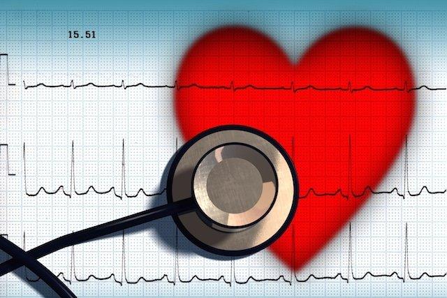 O que causa a Válvula aórtica bicúspide e como tratar
