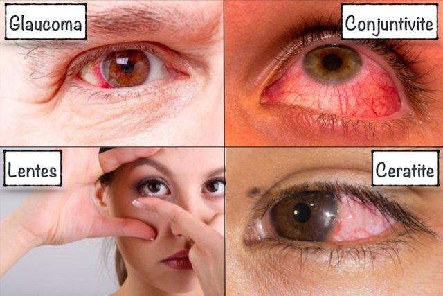 dor nos olhos como tratar