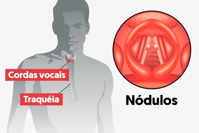 O que causa e como evitar o Calo nas Cordas Vocais