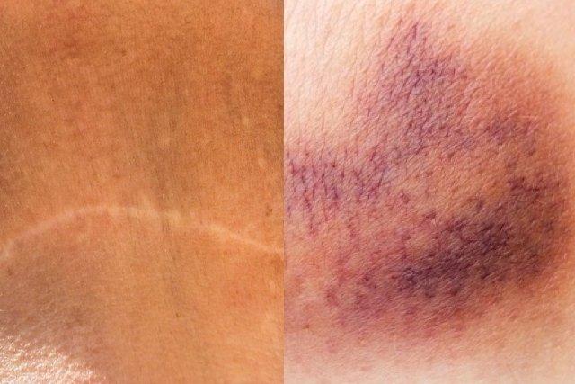 Cicatriz e hematoma após a cirurgia