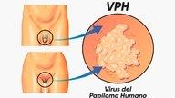 ¿El VPH tiene cura?