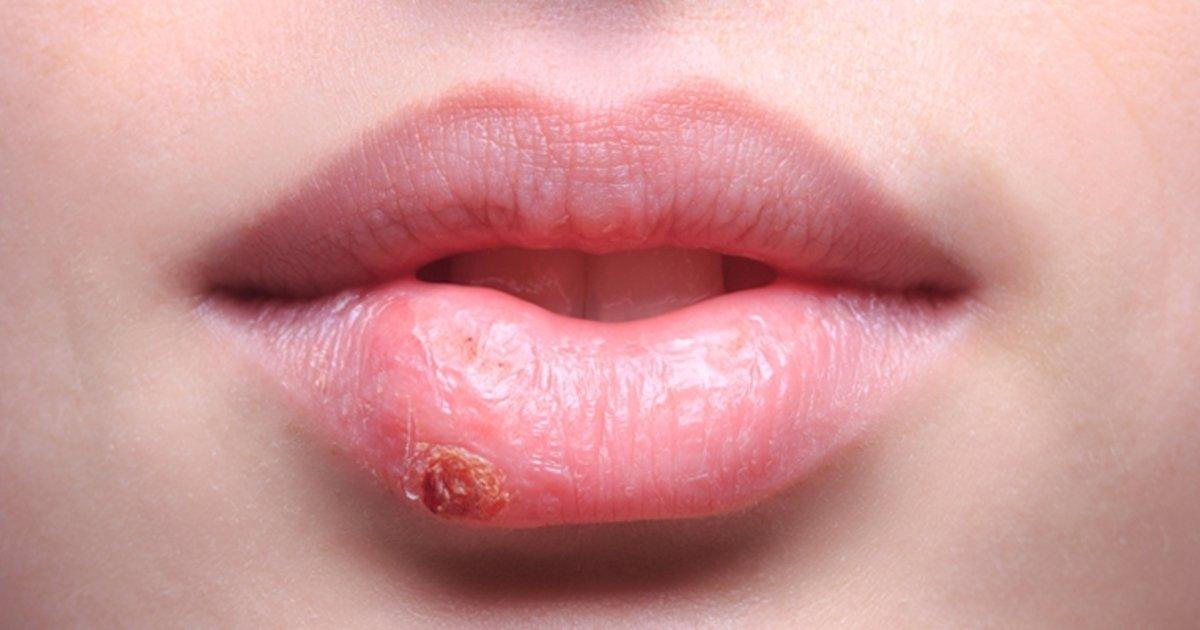 Herpes En La Boca Sintomas Y Como Tratar Tua Saude