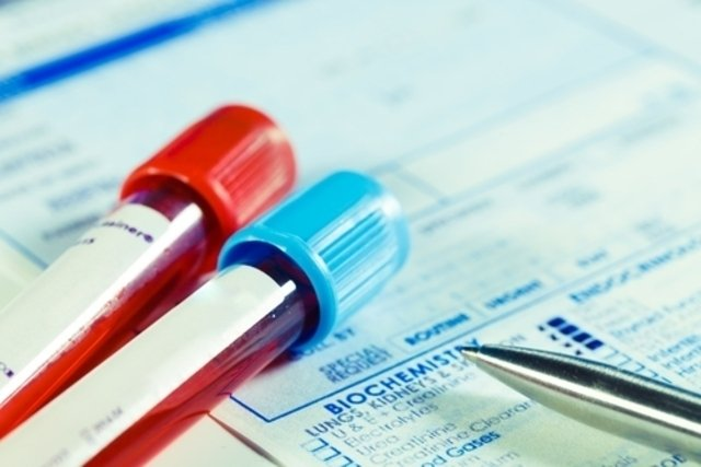 O que é o exame de bilirrubina direta e indireta