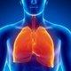 Embolia pulmonar: qué es, síntomas, causas y tratamiento