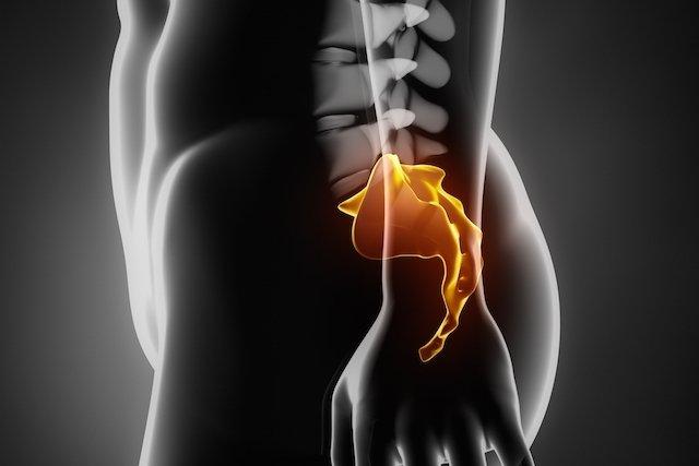 Cisto de Tarlov: O que é, Tratamento e Gravidade