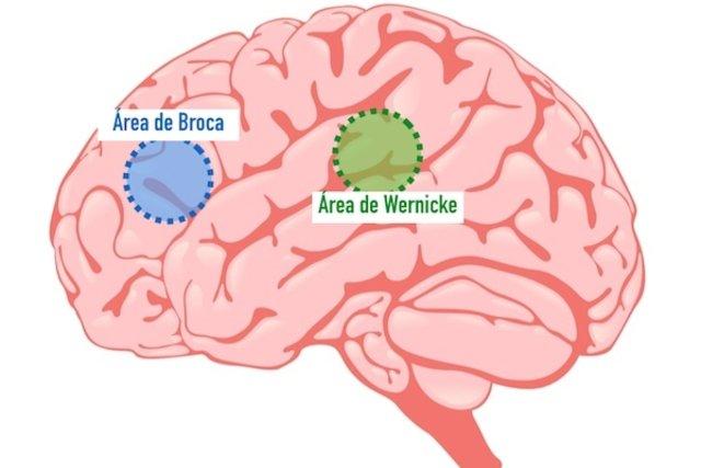 Áreas do cérebro que quando estão afetadas provocam afasia
