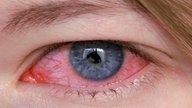 Conjuntivitis Bacteriana: síntomas, tratamiento y duración