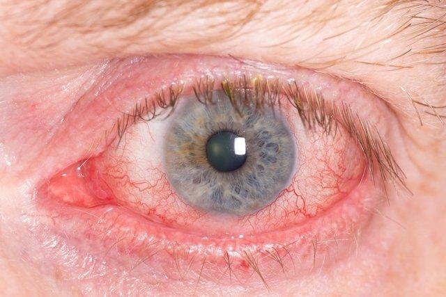 O que pode ser o inchaço nos olhos