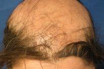Saiba o que é Alopécia, as principais causas e como tratar