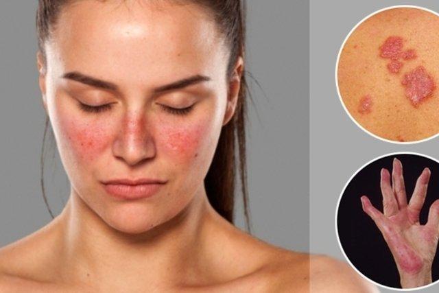 O que é Colagenose e principais sintomas