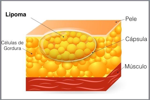 lipoma inflamado
