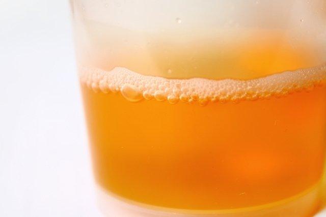 7 principais causas de urina com espuma e o que fazer
