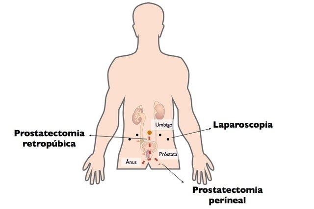 cirurgia prostata recuperação