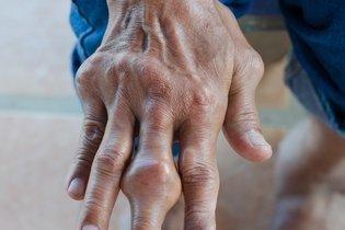 Gota nos dedos da mão