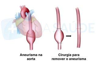 Cirurgia para remover o aneurisma