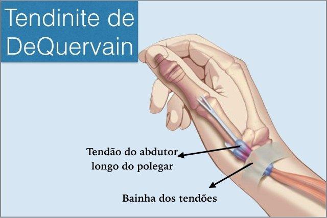 Tratamento para Tenossinovite de DeQuervain