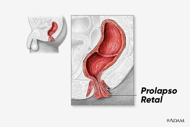 O que é Prolapso Retal e como tratar