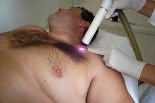 Depilação a laser: Como funciona, quando fazer, quem não pode e cuidados antes e depois