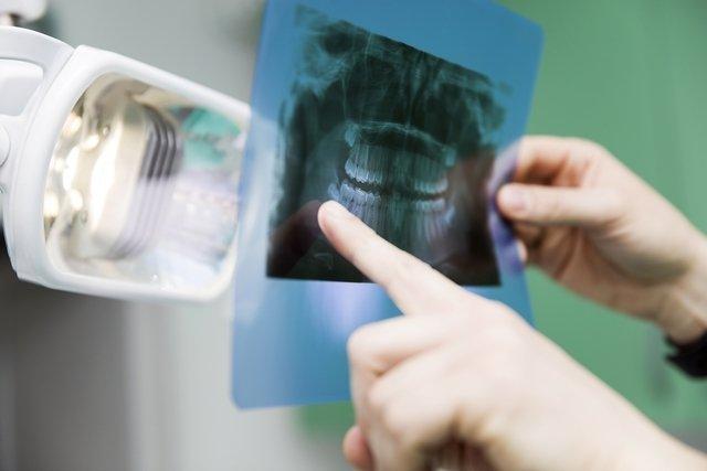 Cisto dentígero - o que é e como é feito o tratamento