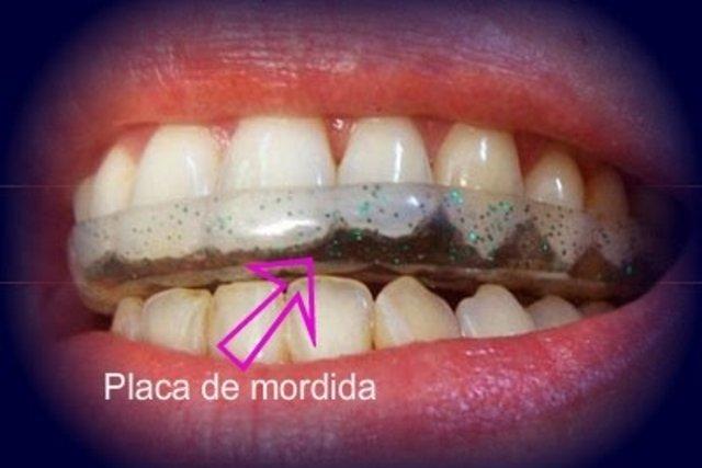 Placa de proteção dentária