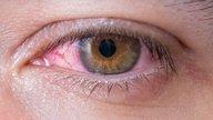 Olho vermelho: 9 causas comuns e o que fazer