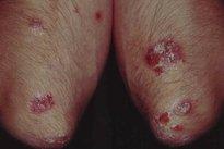 Duhring: uma dermatite especial