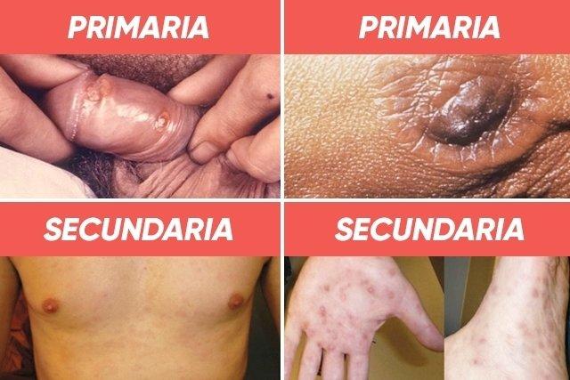 Mujeres en candidiasis primeros de sintomas