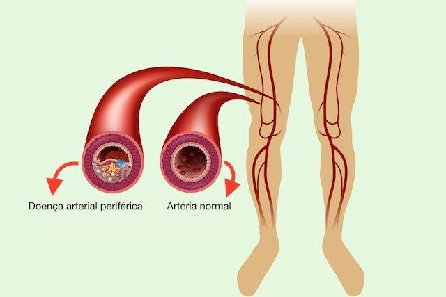 Sobre varicosas informações doenças