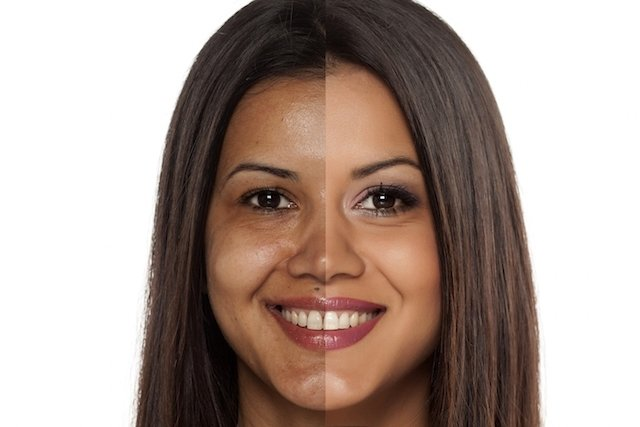 Antes e depois do tratamento com ácido glicólico