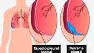 Qué es el derrame pleural, causas y tratamiento