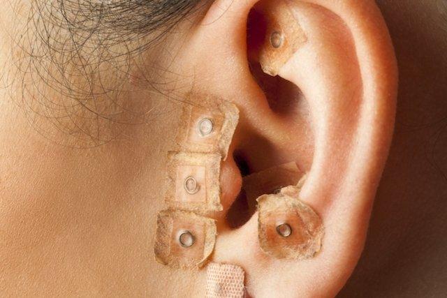 Resultado de imagem para imagens de acupuntura