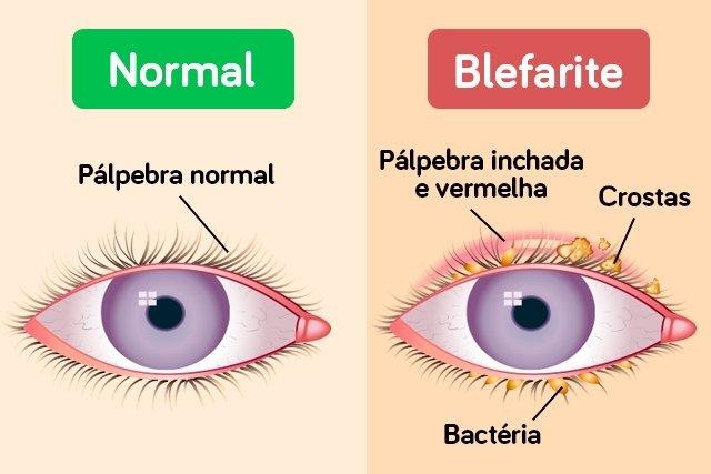 Pálpebra inchada e irritação nos olhos pode ser Blefarite