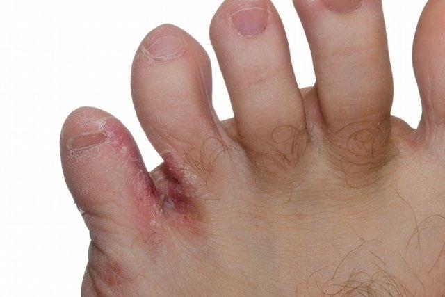 Cómo tratar con pomadas los problemas de piel más comunes