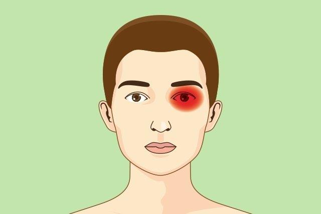 Principais tipos de dor de cabeça: sintomas, causas e tratamento