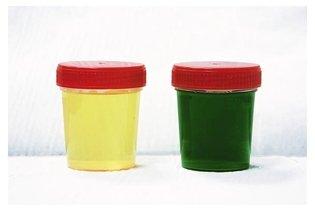 urina-verde_570_m Urina verde: o que pode ser e o que fazer